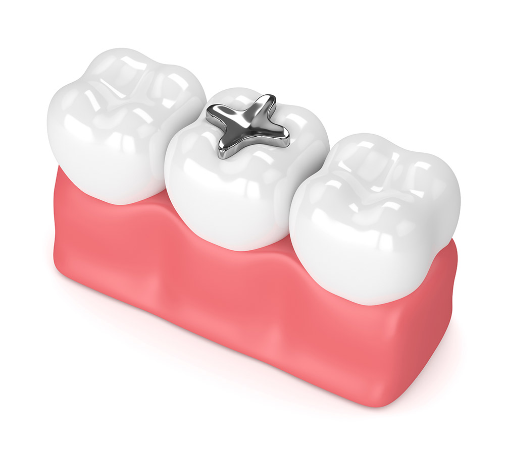 Should I Have My Silver Fillings Removed?