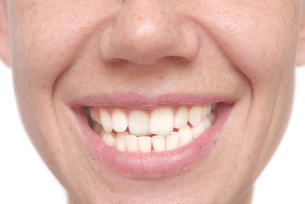 Can Cosmetic Dentistry Fix Crooked Teeth?