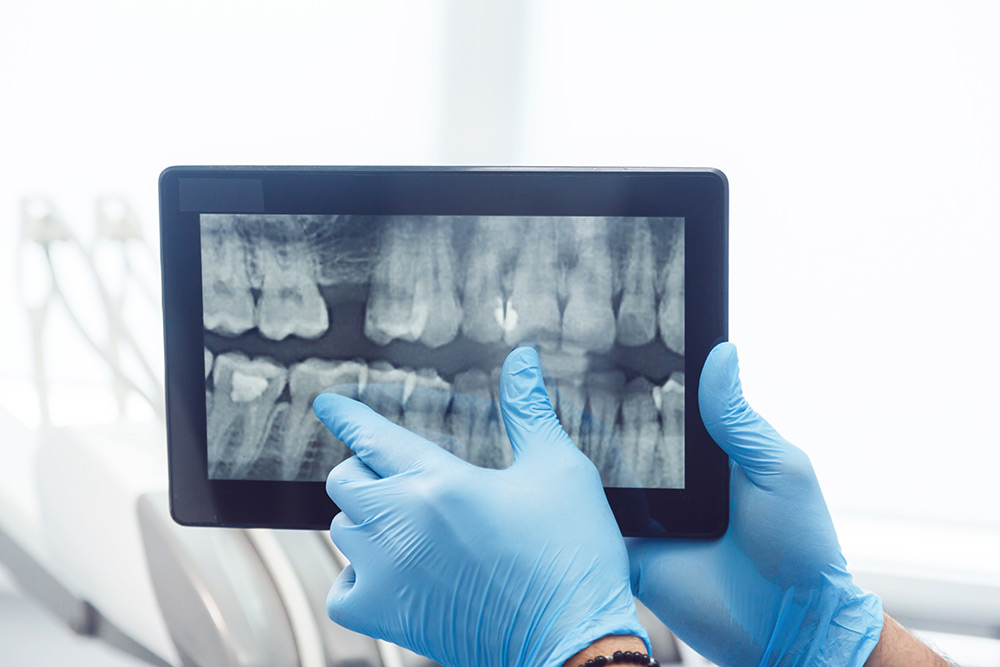 Are Digital X-Rays Safe?